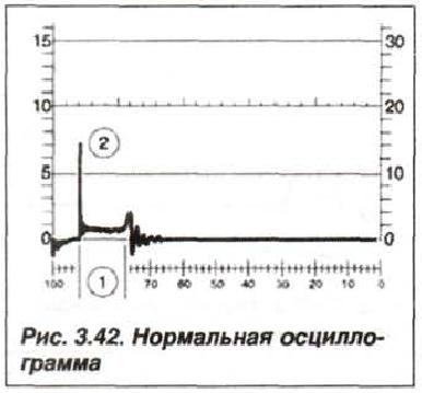 Рис. 3.42. Нормальная осциллограмма