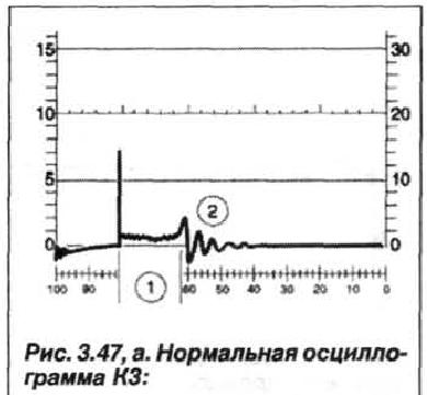 Рис. 3.47, а. Нормальная осциллограмма К3